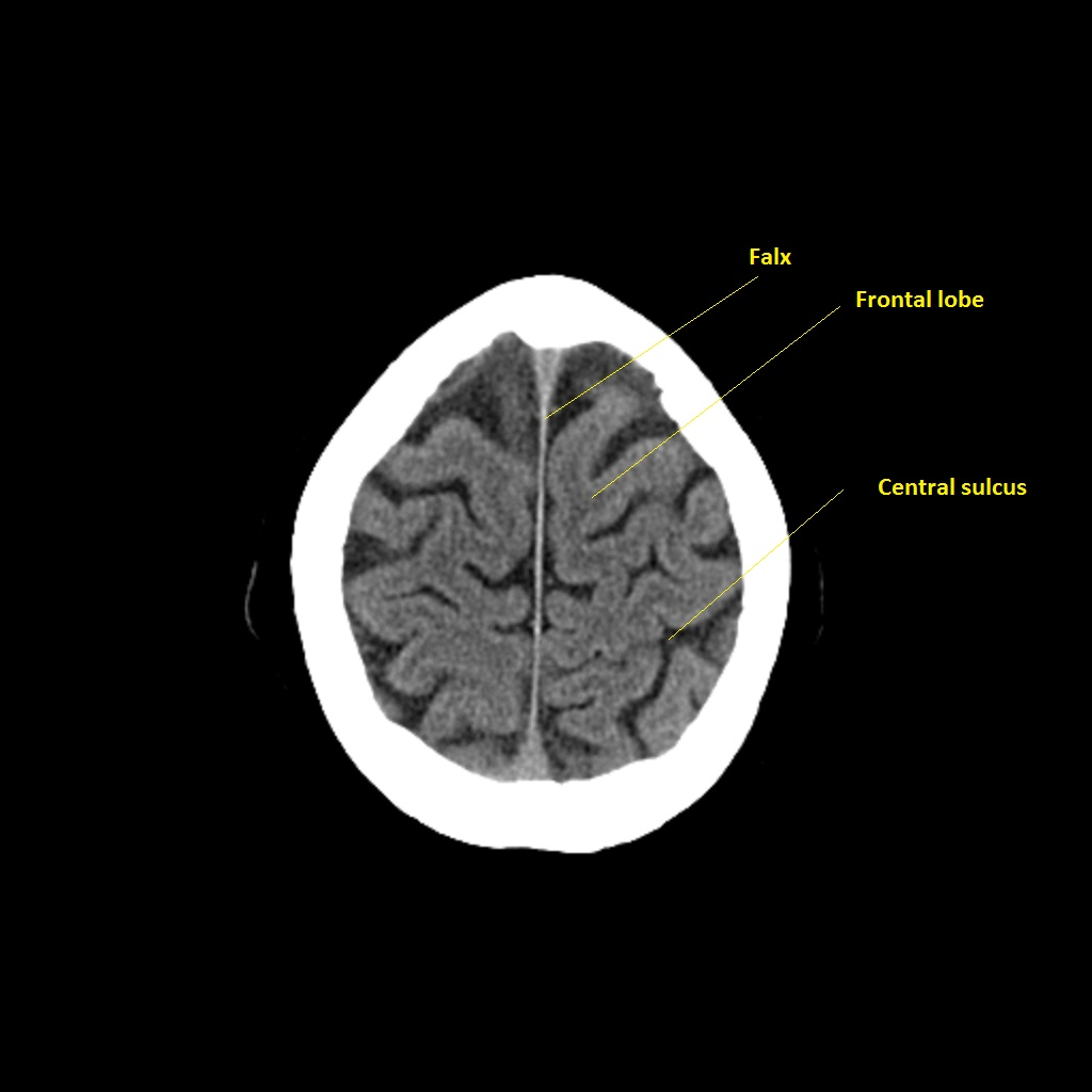 Stroke Medicine For Stroke Physicians And Neurologists