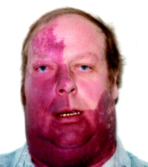 Sturge Weber syndrome